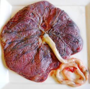 human-placenta